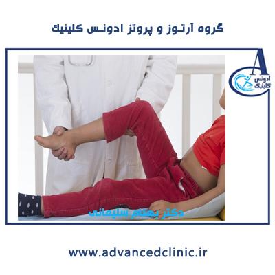 درمان پای پرانتزی در کودکان-ادونس کلینیک